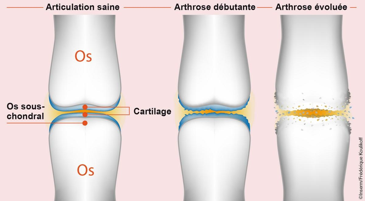 Des implants intelligents pour réparer le cartilage