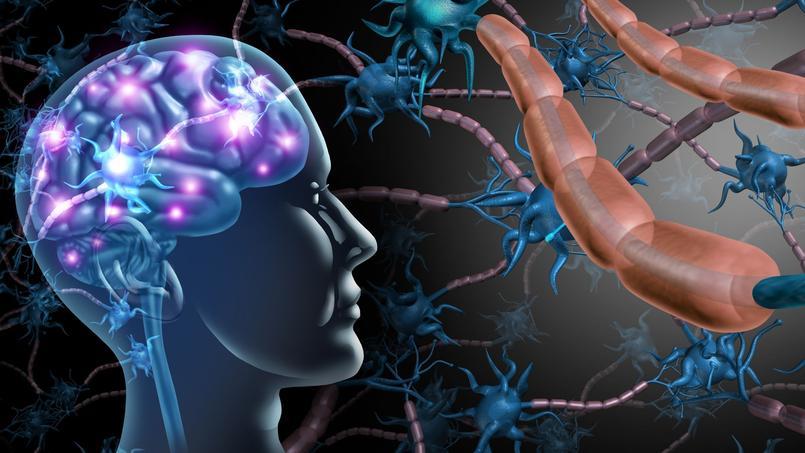 Sclérose en plaques: quand le système immunitaire attaque le système nerveux