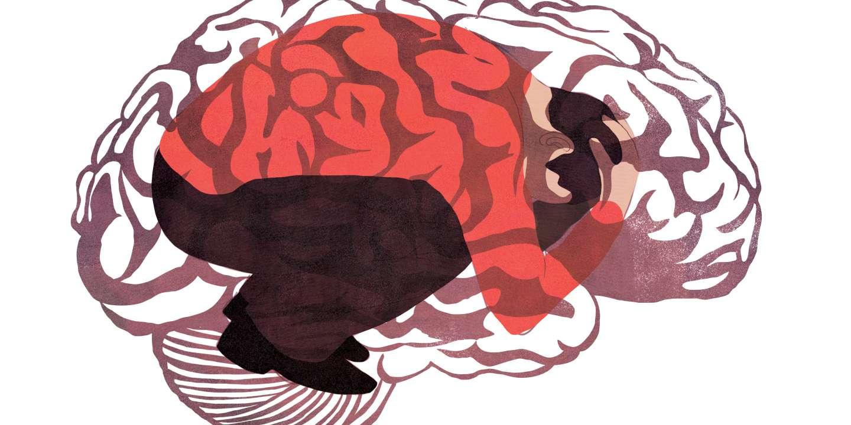 Migraine : de nouveaux médicaments redonnent de l'espoir